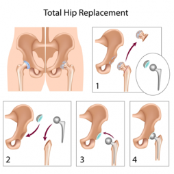 hip-replacement-diagram